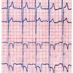 kardiografi-jantung-alat Logo Icon PNG
