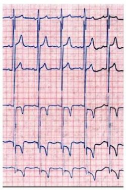 kardiografi-jantung-alat
